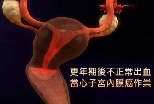 【更年期後不正常出血,當心子宮內膜癌作祟】