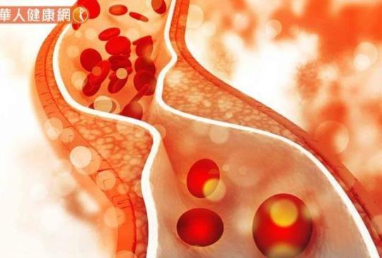 不只是飲食!壓力也會使壞膽固醇上升,這4性格要當心