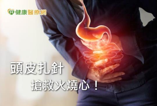 火燒心不見了! 「一根針」治好胃食道逆流