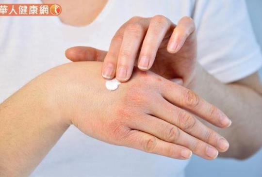 濕疹=異位性皮膚炎?皮膚癢發作好難受?食衣住行這樣做改善