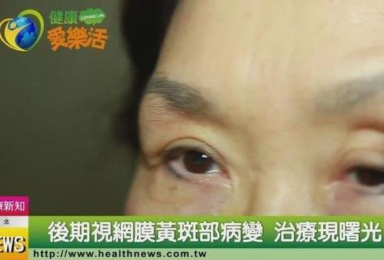 後期視網膜黃斑部病變 治療現曙光