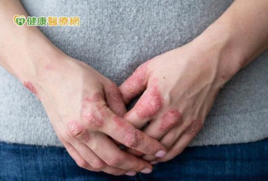 乾癬西醫治療、中醫調理 我可以怎麼做?