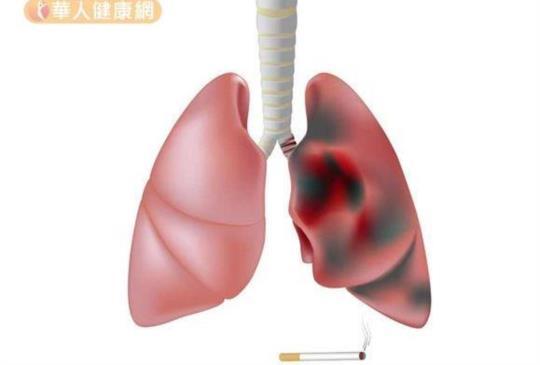 防肺癌不只戒菸!職業環境更要當心