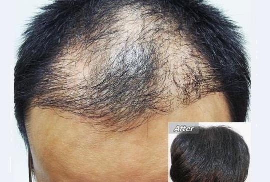 挑戰植髮高存活率 植髮醫師出奇招
