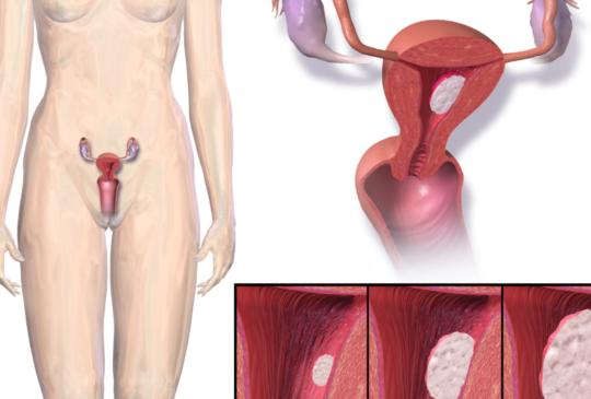 【聽聽醫生怎麼說-子宮頸癌專業訪談】