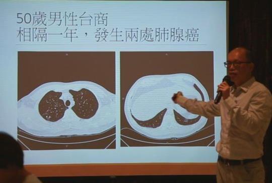 【肺癌再發率高 雙癌、三癌屢見不鮮】