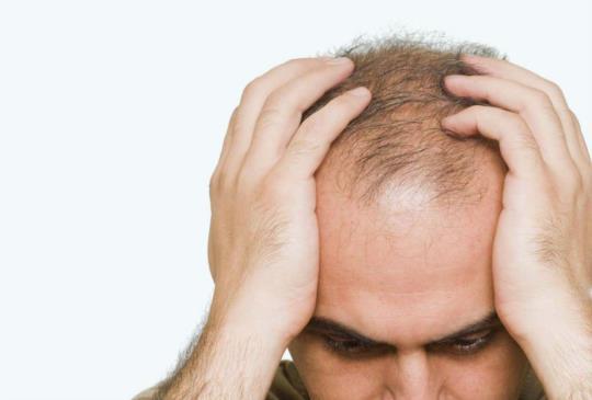 生活壓力劇增 落髮年輕化