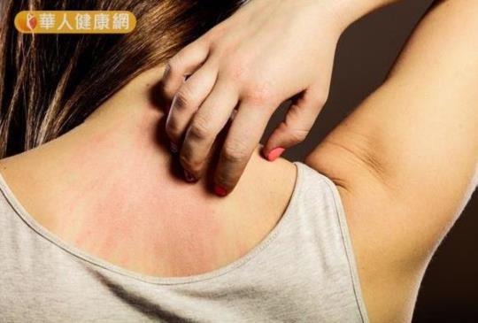 【靠吃改善粗糙痱子肌~先看痱子長在前胸還是後背!】