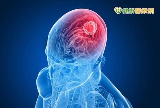 【記憶短期大幅衰退 小心腦瘤威脅!】