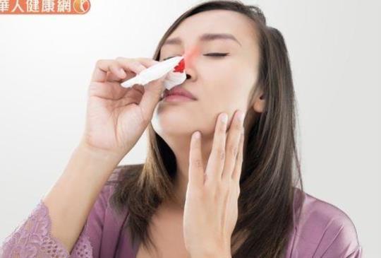 莫名流鼻血是火氣太大?中醫:體質燥熱多喝菊花茶、按壓2穴道改善
