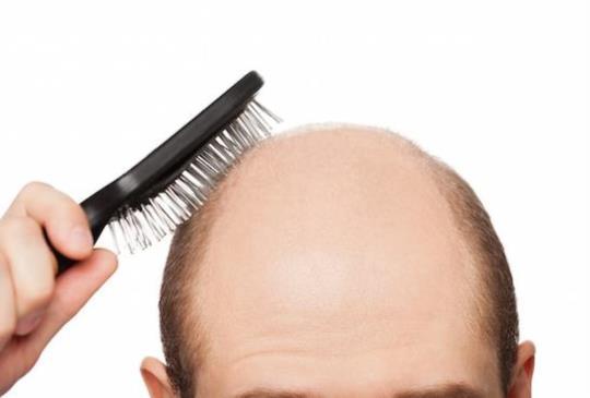 【落髮知多少? 頭髮健康一測就知道】