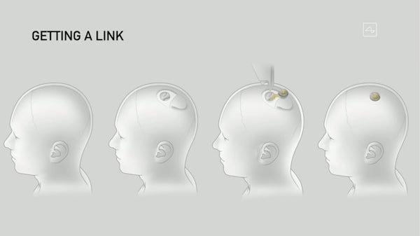 Neuralink00002.jpeg